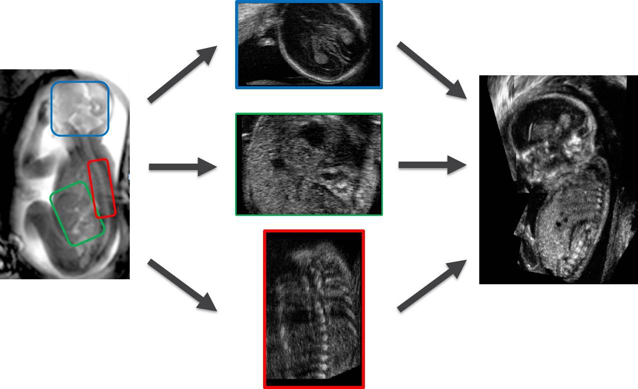 comprehensive fetal MRI