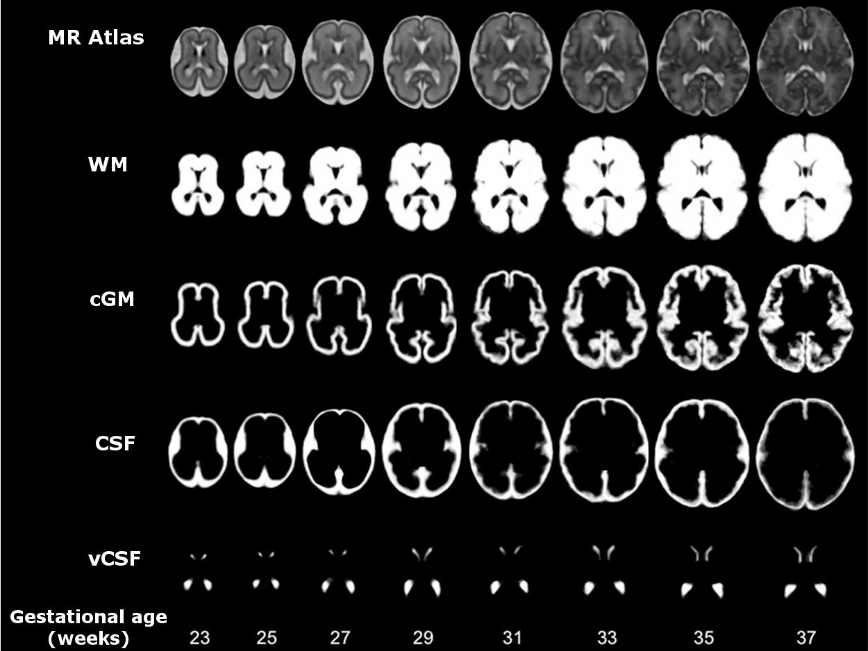 fetal brain MRI atlas